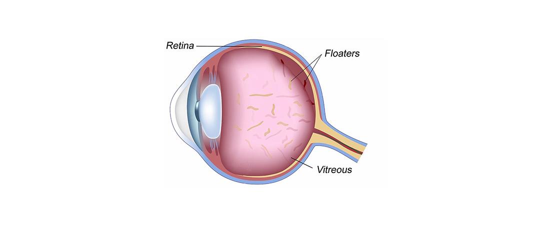 Blogginlägg om Eye floaters